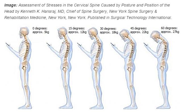 Tech Neck – The New Epidemic – Cambridge Osteopathy